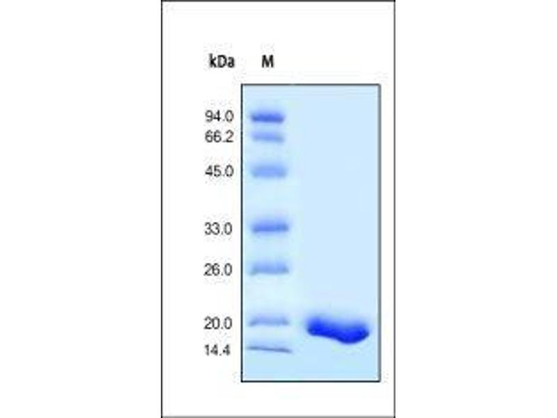 SDS-PAGE (SDS) image for Tumor Necrosis Factor (TNF) (AA 77-233) (Active) protein (ABIN2181831)