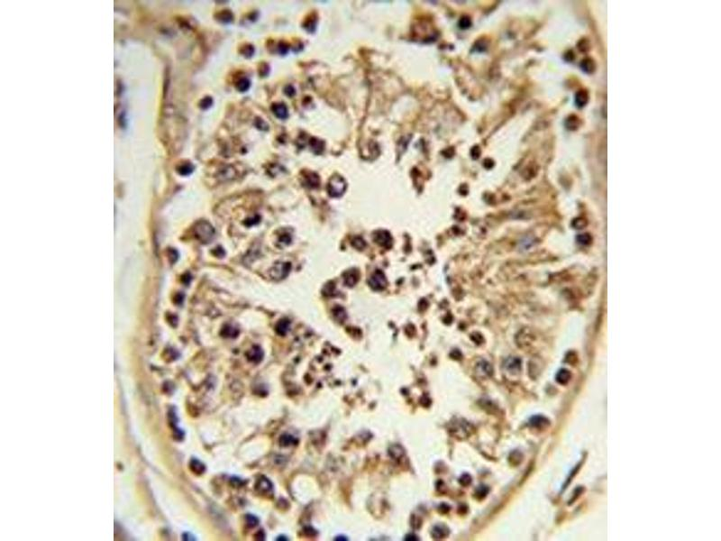 Immunohistochemistry (Paraffin-embedded Sections) (IHC (p)) image for anti-Chondroitin Polymerizing Factor (CHPF) (Middle Region) antibody (ABIN951509)