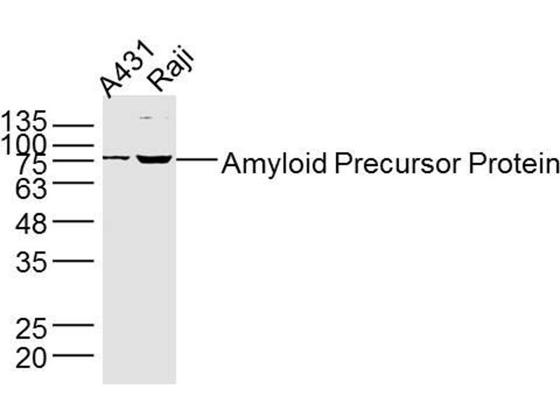 Western Blotting (WB) image for anti-Amyloid beta (A4) Precursor Protein (APP) (AA 380-430) antibody (ABIN725120)
