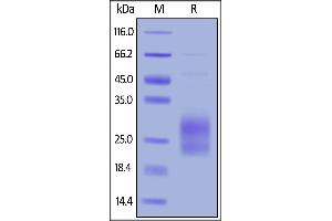 Image no. 2 for Inducible T-Cell Co-Stimulator (ICOS) (AA 21-141) (Active) protein (His tag) (ABIN6388254)