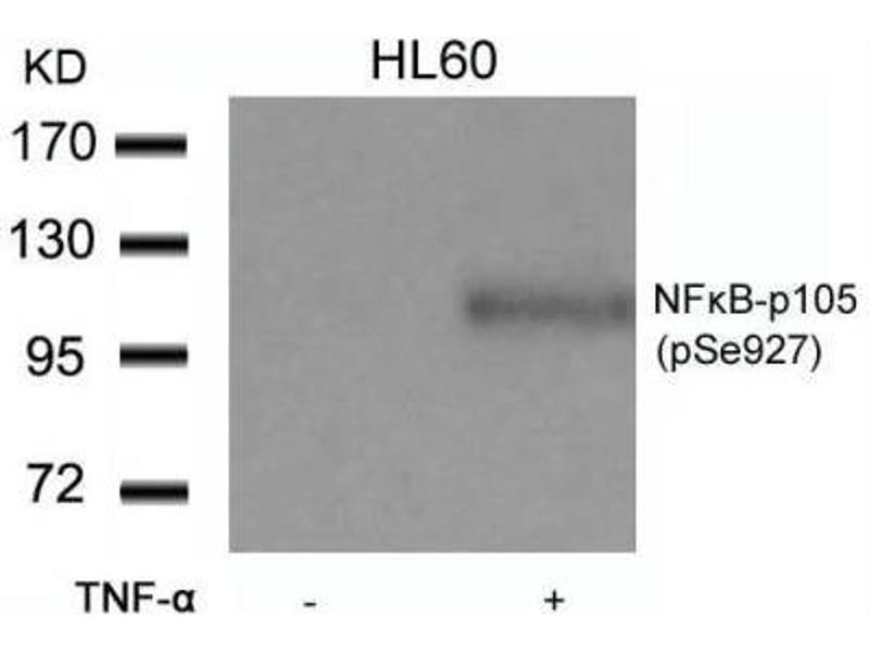 Western Blotting (WB) image for anti-NFKB1 antibody (Nuclear Factor of kappa Light Polypeptide Gene Enhancer in B-Cells 1) (pSer927) (ABIN4339346)