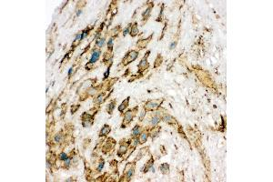 Immunohistochemistry (IHC) image for anti-Kinase insert Domain Receptor (A Type III Receptor tyrosine Kinase) (KDR) (AA 454-469), (Middle Region) antibody (ABIN3044301)