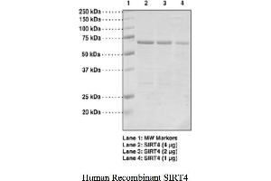 Image no. 1 for Sirtuin 4 (SIRT4) protein (GST tag) (ABIN1526015)