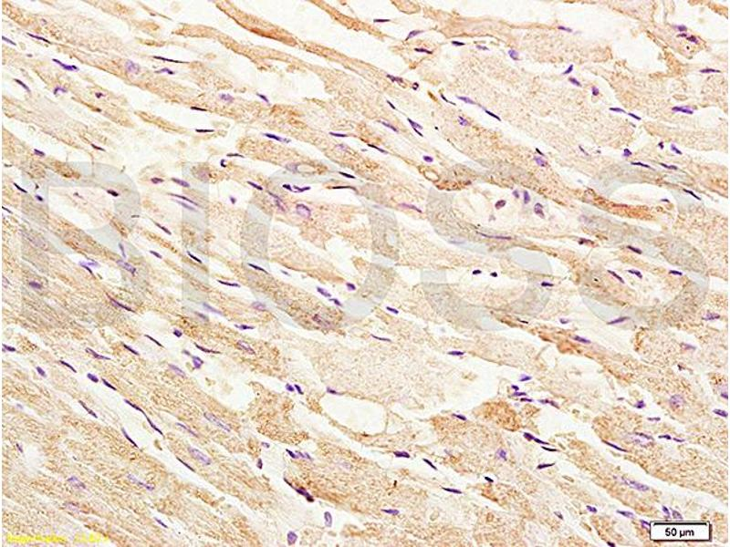 Immunohistochemistry (IHC) image for anti-Mitogen-Activated Protein Kinase Kinase Kinase 5 (MAP3K5) (AA 825-875), (pThr845) antibody (ABIN683128)