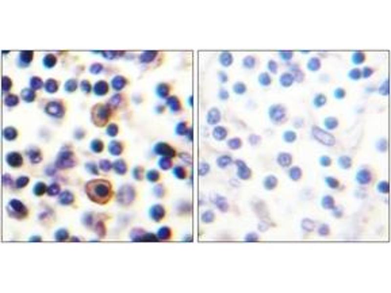Immunohistochemistry (IHC) image for anti-IL9 Receptor antibody (Interleukin 9 Receptor) (pSer519) (ABIN1531670)
