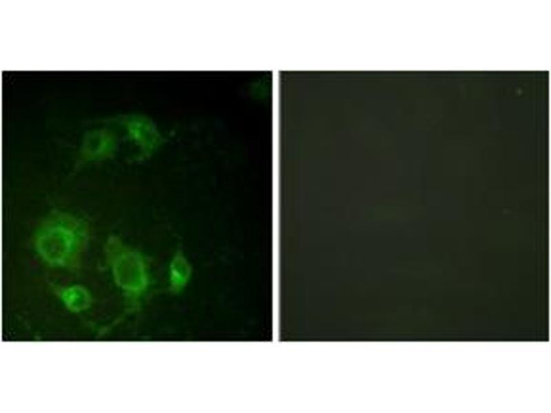 Immunofluorescence (IF) image for anti-Epidermal Growth Factor Receptor (EGFR) (AA 661-710) antibody (ABIN1532195)