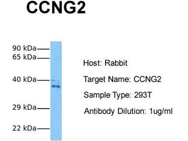 Western Blotting (WB) image for anti-Cyclin G2 (CCNG2) (N-Term) antibody (ABIN2792163)