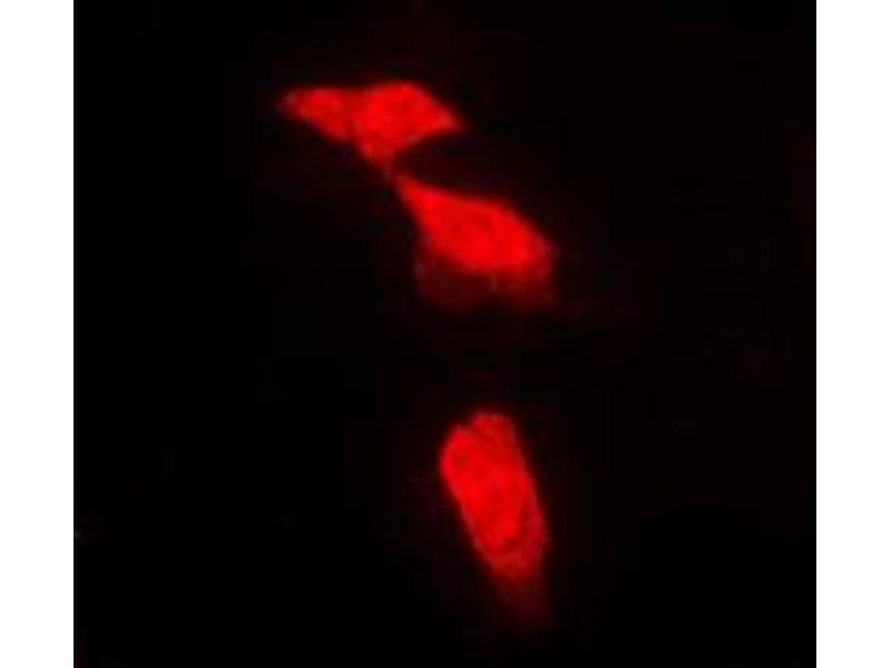 Immunofluorescence (IF) image for anti-Protein Phosphatase 2, Regulatory Subunit B', alpha (PPP2R5A) (Center) antibody (ABIN2706861)
