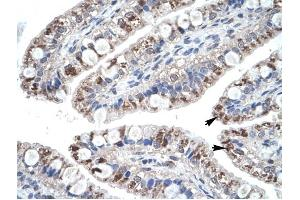 Image no. 2 for anti-Chemokine (C-C Motif) Ligand 18 (Pulmonary and Activation-Regulated) (CCL18) (Middle Region) antibody (ABIN926931)