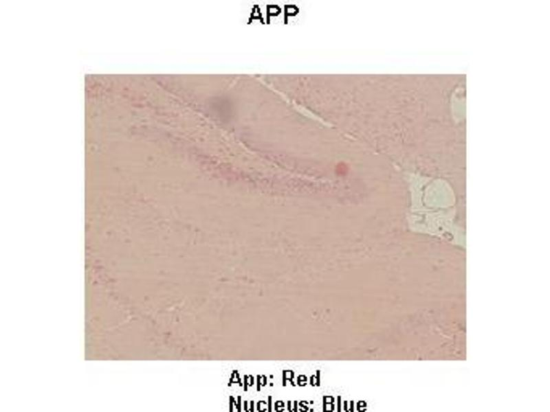 Immunohistochemistry (IHC) image for anti-Amyloid beta (A4) Precursor Protein (APP) (Middle Region) antibody (ABIN2777739)