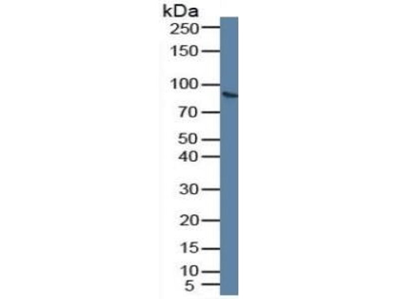 Plasminogen (PLG) CLIA Kit