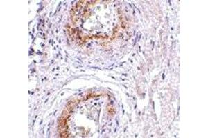 Image no. 1 for anti-G Protein-Coupled Receptor 124 (GPR124) (C-Term) antibody (ABIN1030729)
