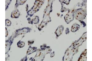 Immunohistochemistry (Paraffin-embedded Sections) (IHC (p)) image for anti-Jumonji Domain Containing 1C (JMJD1C) (AA 2-100) antibody (ABIN396600)