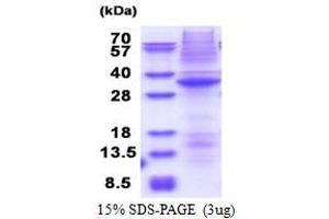 Image no. 1 for serine/threonine Kinase 17a (STK17A) (AA 64-321) protein (His tag) (ABIN5853608)