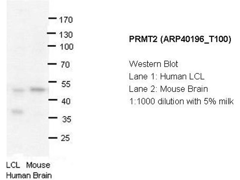 Image no. 2 for anti-PRMT2 antibody (Protein Arginine Methyltransferase 2) (N-Term) (ABIN183891)