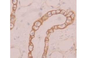 Image no. 3 for anti-Solute Carrier Family 39 (Zinc Transporter), Member 6 (SLC39A6) (AA 29-325) antibody (ABIN1870967)