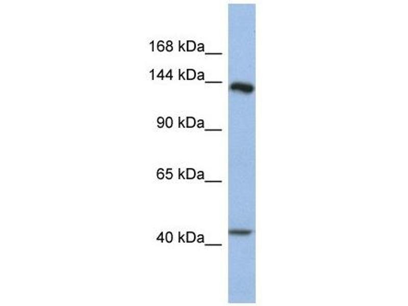 Western Blotting (WB) image for anti-Slit Homolog 1 (Drosophila) (SLIT1) antibody (ABIN633869)