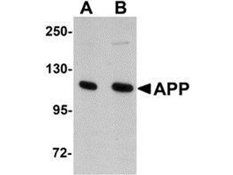 Western Blotting (WB) image for anti-APP antibody (Amyloid beta (A4) Precursor Protein) (N-Term) (ABIN499321)