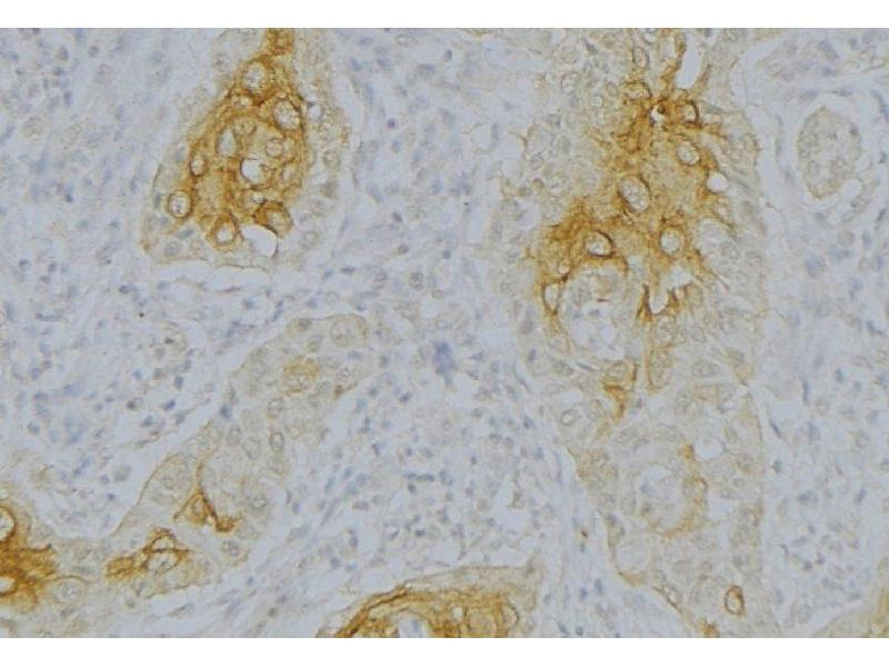 Immunohistochemistry (IHC) image for anti-Complement Factor B (CFB) antibody (ABIN6260775)