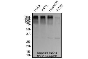 Western Blotting (WB) image for anti-Tumor Protein P53 Binding Protein 1 (TP53BP1) (AA 350-400) antibody (ABIN151770)