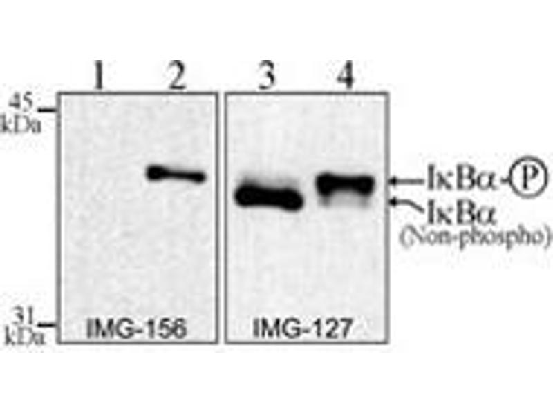 Western Blotting (WB) image for anti-Nuclear Factor of kappa Light Polypeptide Gene Enhancer in B-Cells Inhibitor, alpha (NFKBIA) (AA 32-291) antibody (ABIN252471)
