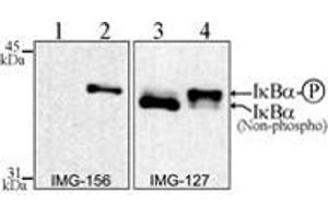 Western Blotting (WB) image for anti-NFKBIA antibody (Nuclear Factor of kappa Light Polypeptide Gene Enhancer in B-Cells Inhibitor, alpha) (AA 32-291) (ABIN252471)