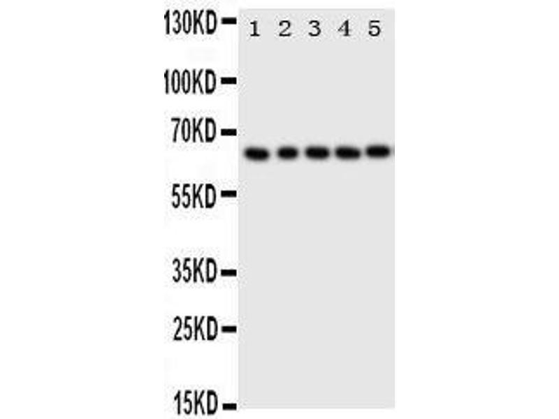 Western Blotting (WB) image for anti-Tumor Protein P63 (TP63) (AA 664-680), (C-Term) antibody (ABIN3044067)