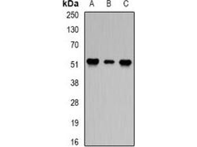 Western Blotting (WB) image for anti-Protein Phosphatase 2 Regulatory Subunit 2A (PPP2R2A) antibody (ABIN2966922)