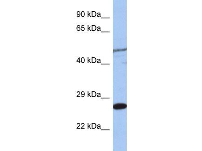 Western Blotting (WB) image for anti-MIS12, MIND Kinetochore Complex Component, Homolog (S. Pombe) (MIS12) (Middle Region) antibody (ABIN2787627)