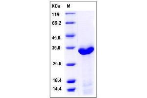 Image no. 1 for Complement Component 1, Q Subcomponent Binding Protein (C1QBP) (AA 72-279), (Mature) protein (His tag) (ABIN2007501)