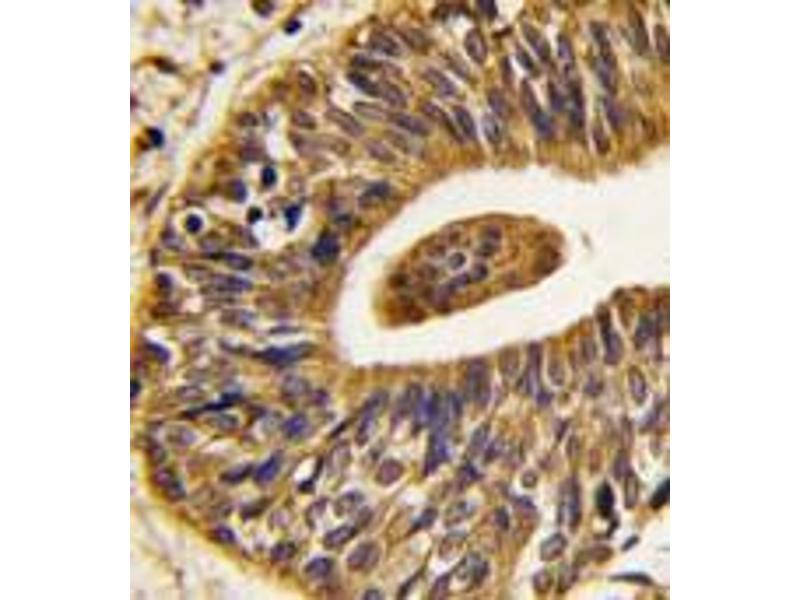 Immunohistochemistry (Paraffin-embedded Sections) (IHC (p)) image for anti-V-Erb-B2 erythroblastic Leukemia Viral Oncogene Homolog 2, Neuro/glioblastoma Derived Oncogene Homolog (Avian) (ERBB2) (Tyr1248) antibody (ABIN359842)