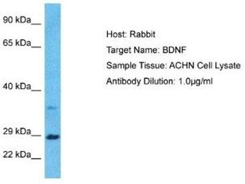 Western Blotting (WB) image for anti-Brain-Derived Neurotrophic Factor (BDNF) antibody (ABIN4892211)
