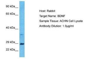 Western Blotting (WB) image for anti-Brain-Derived Neurotrophic Factor (BDNF) antibody (ABIN4892211)