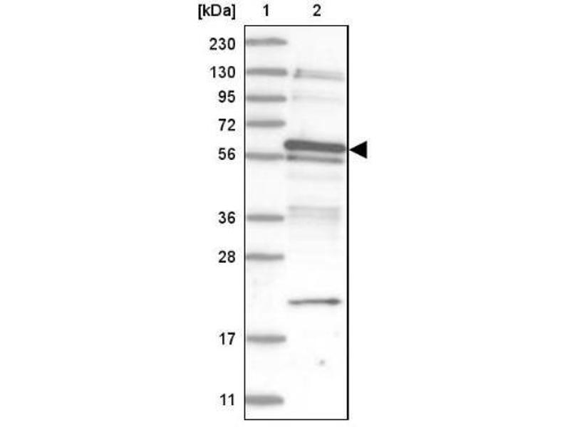 Western Blotting (WB) image for anti-TSPY-Like 1 (TSPYL1) antibody (ABIN4363221)