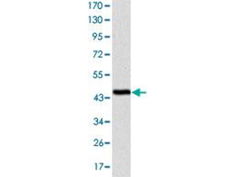 Western Blotting (WB) image for anti-Cas-Br-M (Murine) Ecotropic Retroviral Transforming Sequence (CBL) antibody (ABIN5573840)