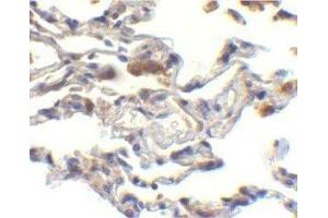 Immunohistochemistry (Paraffin-embedded Sections) (IHC (p)) image for anti-Baculoviral IAP Repeat Containing 2 (BIRC2) antibody (ABIN4298712)