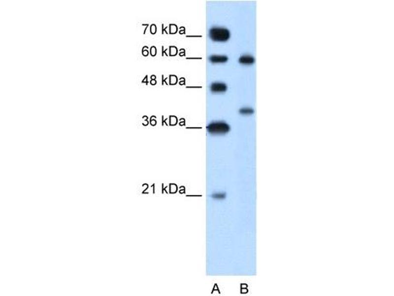 Western Blotting (WB) image for anti-Arginase, Liver (ARG1) (Arg1), (N-Term) antibody (ABIN629657)