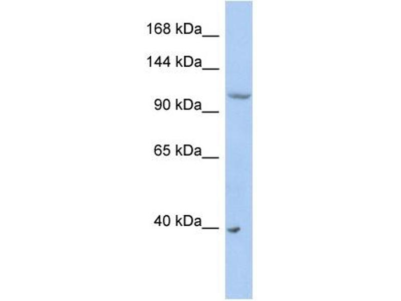 Western Blotting (WB) image for anti-Neural Precursor Cell Expressed, Developmentally Down-Regulated 4-Like (NEDD4L) (Middle Region) antibody (ABIN2774731)