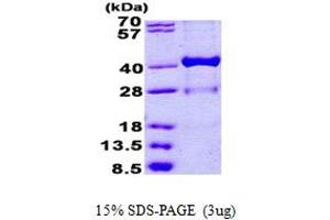 Image no. 1 for Hydroxysteroid (17-Beta) Dehydrogenase 1 (HSD17B1) (AA 1-328) protein (His tag) (ABIN5852977)