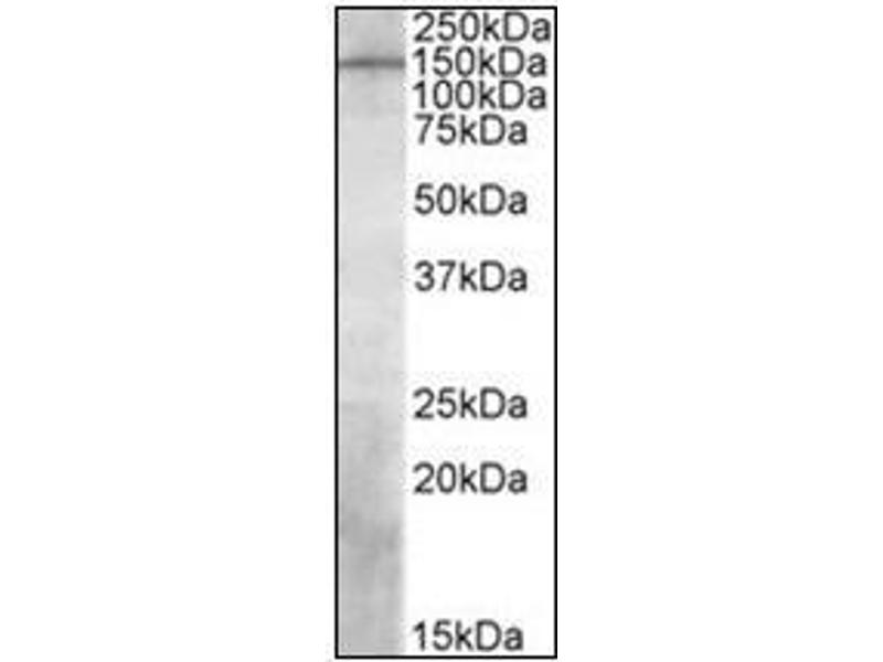 Western Blotting (WB) image for anti-Phosphatidylinositol-3,4,5-Trisphosphate-Dependent Rac Exchange Factor 1 (PREX1) (Internal Region) antibody (ABIN784149)