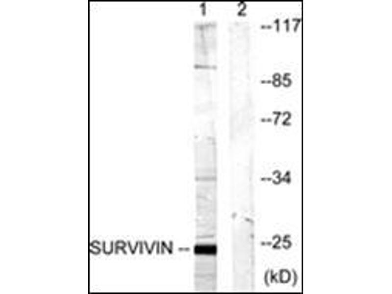 Western Blotting (WB) image for anti-BIRC5 antibody (Baculoviral IAP Repeat-Containing 5) (ABIN1449649)