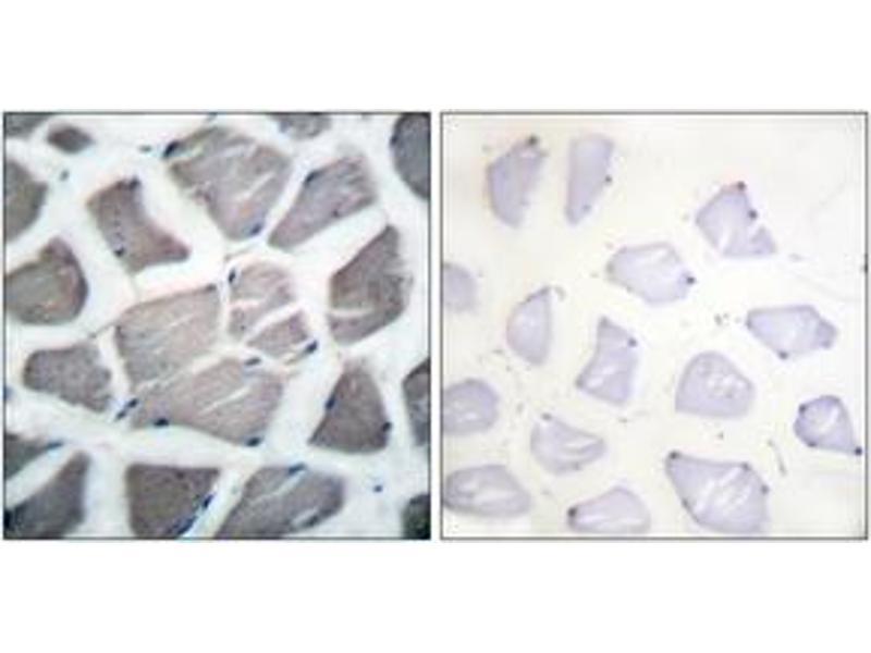 Immunohistochemistry (IHC) image for anti-BCL2-Antagonist/killer 1 (BAK1) (AA 1-50) antibody (ABIN1533215)
