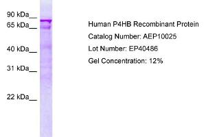 Image no. 1 for Prolyl 4-Hydroxylase, beta Polypeptide (P4HB) protein (ABIN987264)