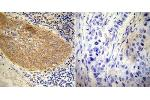 Immunohistochemistry (Paraffin-embedded Sections) (IHC (p)) image for anti-Nuclear Receptor Subfamily 3, Group C, Member 1 (Glucocorticoid Receptor) (NR3C1) antibody (ABIN152763)
