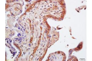 Immunohistochemistry (IHC) image for anti-TRIM29 antibody (Tripartite Motif Containing 29) (AA 253-283) (ABIN873066)