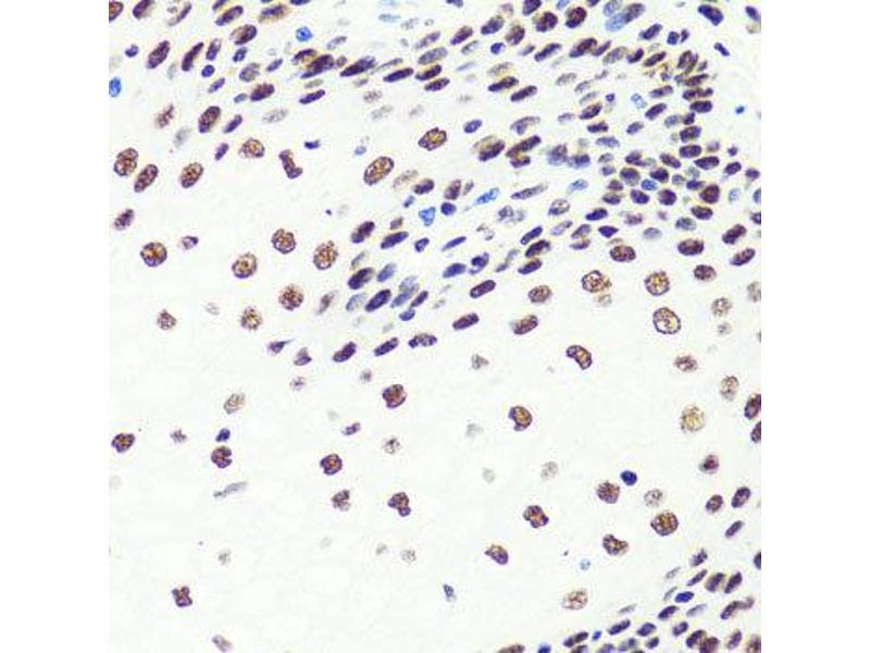 Immunohistochemistry (IHC) image for anti-Suppressor of Cytokine Signaling 1 (SOCS1) antibody (ABIN2737570)