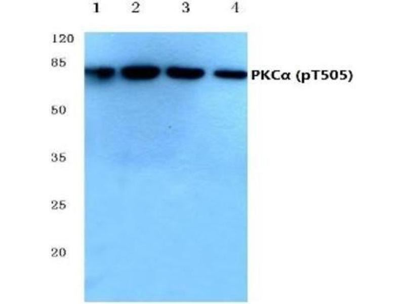 Western Blotting (WB) image for anti-PKC delta antibody (Protein Kinase C, delta) (pThr507) (ABIN4345832)