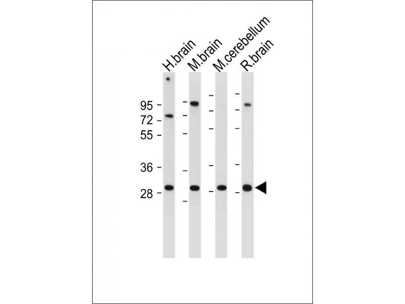 Western Blotting (WB) image for anti-Calcium Binding Protein 1 (CABP1) (AA 311-343), (C-Term) antibody (ABIN391850)