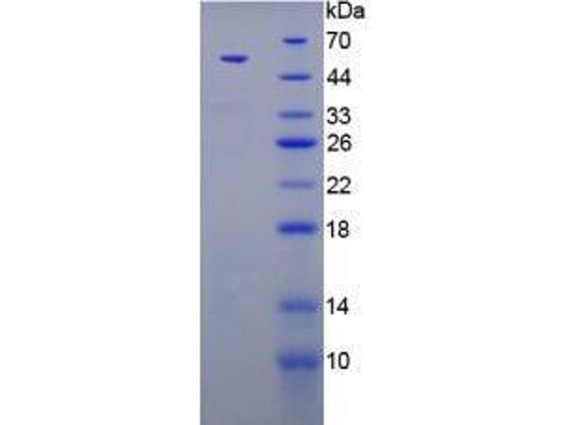 image for Parathyroid Hormone (PTH) (AA 32-115) (Active) protein (MBP tag,His tag) (ABIN5665891)