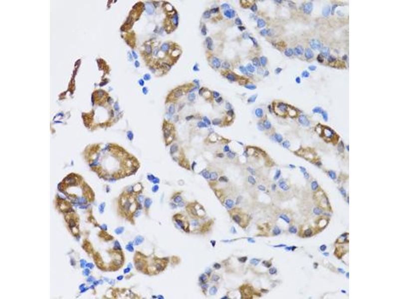 Image no. 3 for anti-ARD1 Homolog, N-Acetyltransferase (ARD1A) antibody (ABIN2561191)